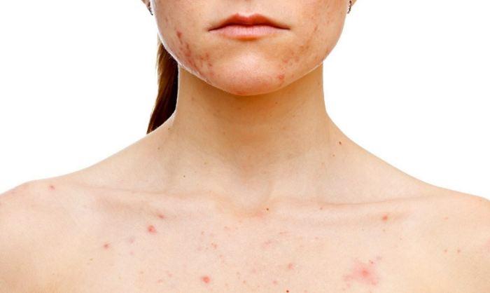 Food allergies and food intolerances