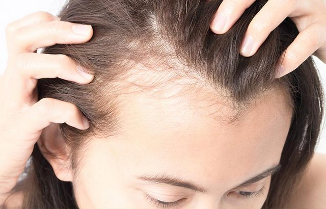 Hair loss during pregnancy