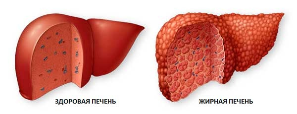 Reduce Fatty Liver: Recognize Symptoms, Change Diet